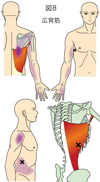 広背筋トリガーポイントによる背部と上肢の痛み