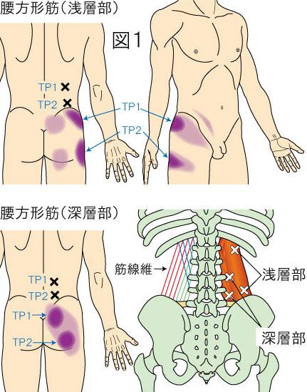 腰方形筋トリガーポイントによる腰・殿部・鼠径部の痛み