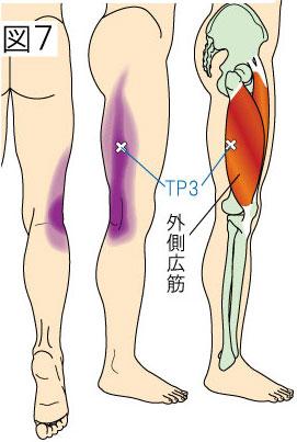 外側広筋トリガーポイントによる大腿と膝の痛み