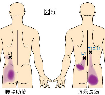 腰腸肋筋・胸最長筋トリガーポイントによるお尻の痛み