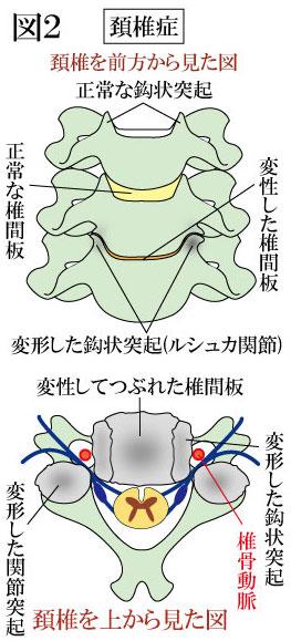 頚椎症 変形