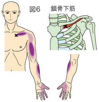 鎖骨下筋トリガーポイントによる胸と手の痛み
