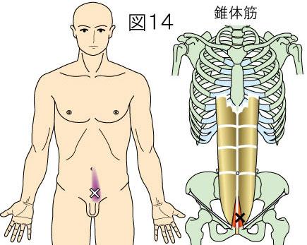 錐体筋トリガーポイントによる痛み