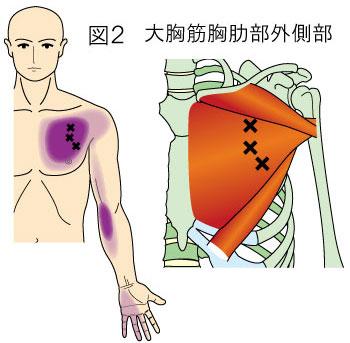 大胸筋肋骨部トリガーポイントによる胸と上肢の痛み