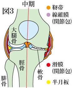 変形性膝関節症 中期
