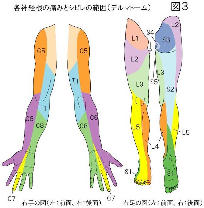 神経根の痛みとシビレの範囲:デルマトーム