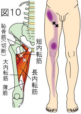 長内転筋・短内転筋トリガーポイントによる大腿・膝・下腿の痛み