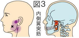 内側翼突筋トリガーポイントによる顔の痛み