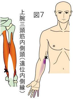 上腕三頭筋内側頭(遠位内側縁)トリガーポイントによる肘・前腕・手指内側の痛み