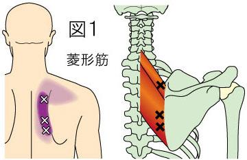 菱形筋トリガーポイントによる上背部の痛み