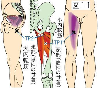 大内転筋トリガーポイントによる骨盤内と大腿の痛み