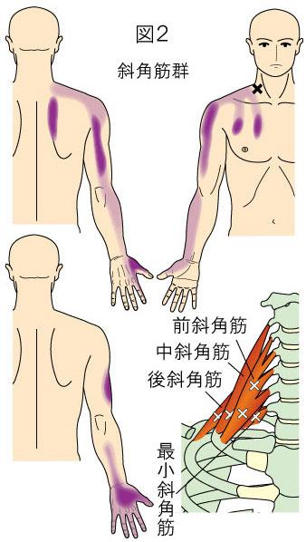 斜角筋トリガーポイントによる胸、上背部、上肢の痛み