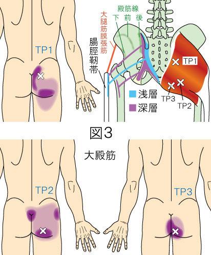 大殿筋トリガーポイントによる殿部から大腿部の痛み