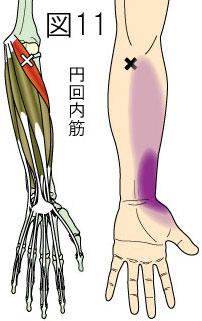 円回内筋トリガーポイントによる前腕・手の痛み