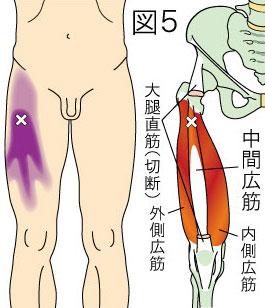 中間広筋トリガーポイントによる大腿の痛み