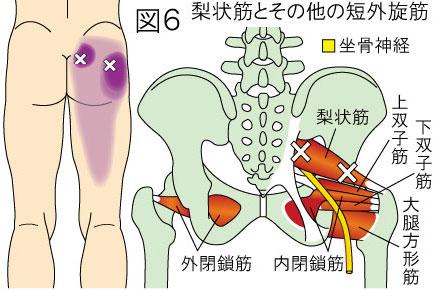 梨状筋(深層外旋六筋)トリガーポイントによる殿部から大腿部の痛み
