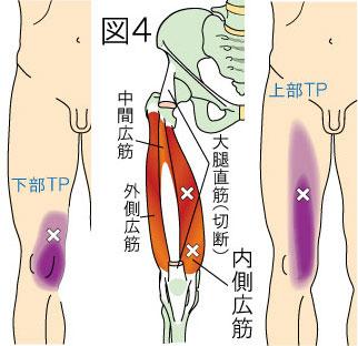 内側広筋トリガーポイントによる大腿と膝の痛み