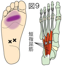 短指屈筋トリガーポイントによる足の痛み
