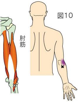肘筋トリガーポイントによる肘外側の痛み