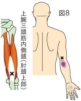 上腕三頭筋内側頭(肘頭上部)トリガーポイントによる肘後側の痛み