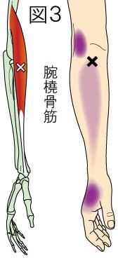 腕橈骨筋トリガーポイントによる肘・前腕・手の痛み