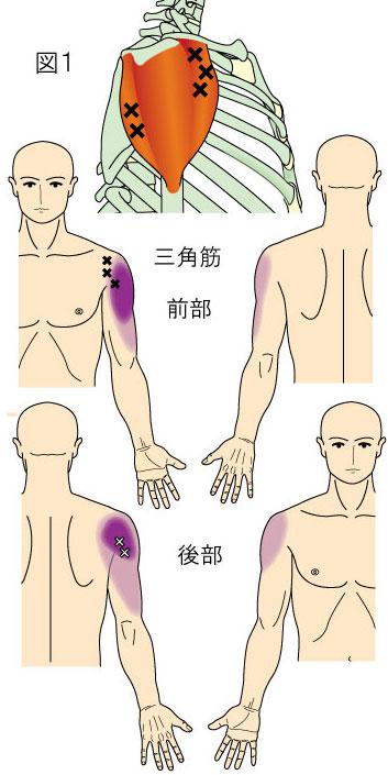 三角筋トリガーポイントによる肩と上腕の痛み