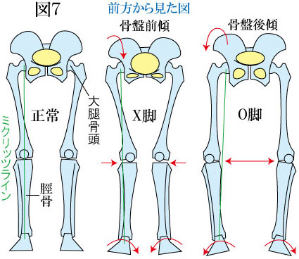 骨盤とO脚・X脚