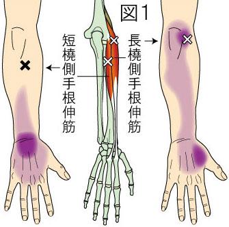 長・短橈側手根伸筋トリガーポイントによる肘・前腕・手の痛み