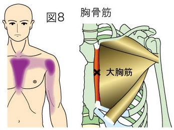 小胸筋トリガーポイントによる胸、肩、上腕の痛み