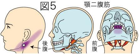 顎二腹筋トリガーポイントによる頭痛と顔の痛み