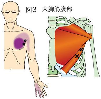 大胸筋腹部トリガーポイントによる胸と手の痛み