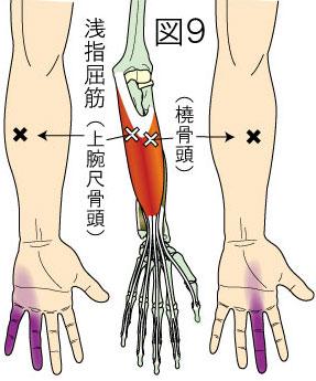 浅指屈筋トリガーポイントによる手と指の痛み