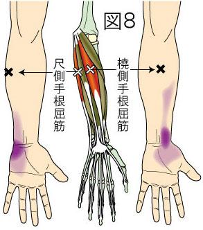 橈側・尺側手根屈筋トリガーポイントによる前腕と手の痛み