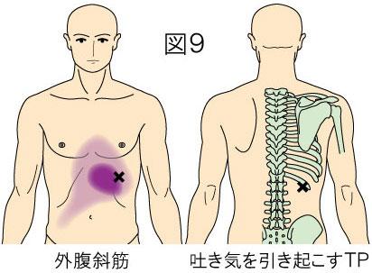 外腹斜筋トリガーポイントによる腹部の痛みと吐き気