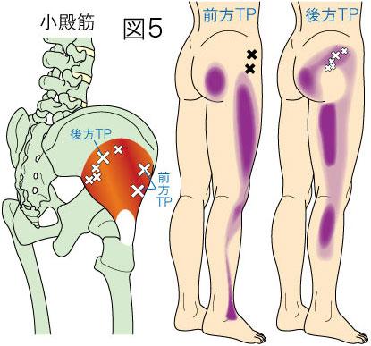小殿筋トリガーポイントによる殿部・大腿部・下腿部の痛み