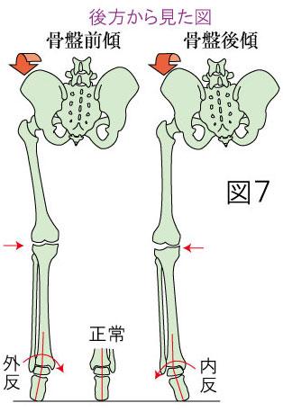足根管症候群と骨盤