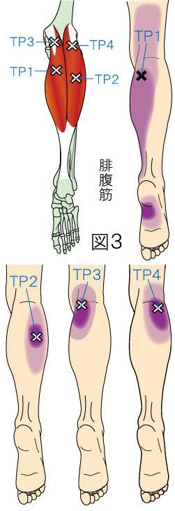 腓腹筋トリガーポイントによる膝・下腿・足の痛み