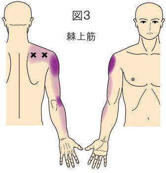 棘上筋トリガーポイントによる肩と上肢の痛み