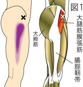 大腿筋膜張筋トリガーポイントによる大腿部の痛み