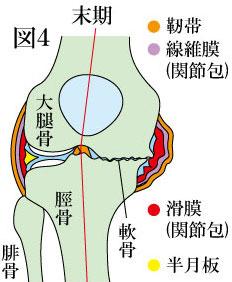 変形性膝関節症 末期