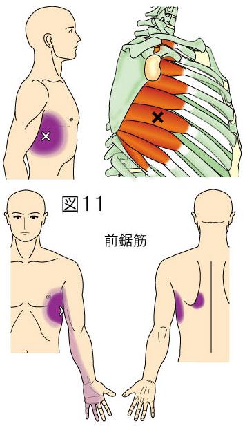 前鋸筋トリガーポイントによる体幹と上肢の痛み
