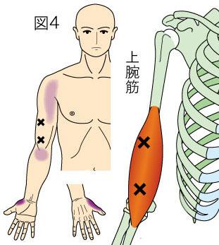 上腕筋トリガーポイントによる親指と肩から肘の痛み