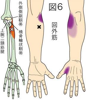 回外筋トリガーポイントによる肘と手の痛み