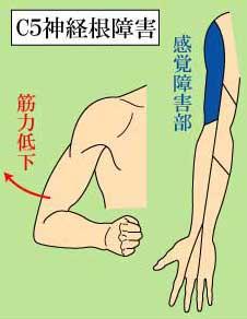 頚椎 C5神経根障害