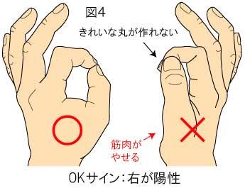 OKサイン 手根管症候群