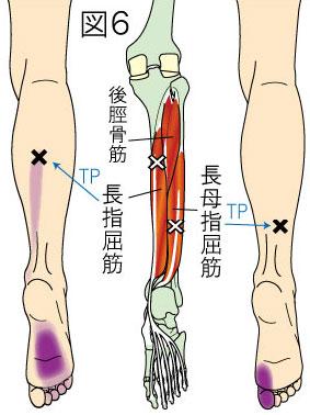長趾屈筋トリガーポイントによる下腿と足の痛み