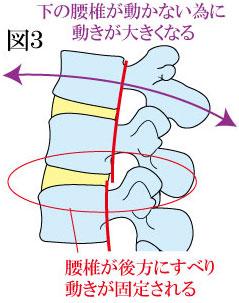 腰椎の固定と不安定性