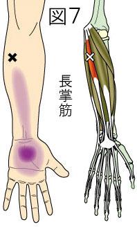 長掌筋トリガーポイントによる前腕と手の痛み