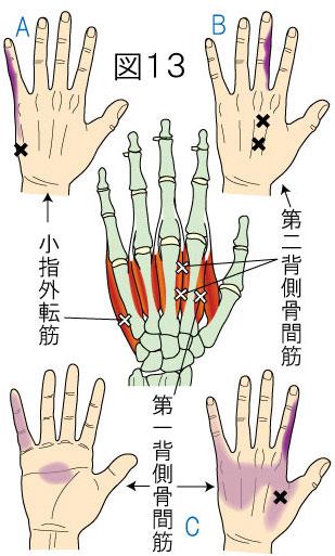 背側骨間筋・小指外転筋トリガーポイントによる手の痛み