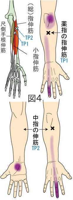 指伸筋トリガーポイントによる肘・前腕・手・指の痛み